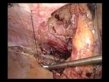 Embedded thumbnail for dr hauters - cure de hernie parastomiale