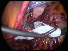 Embedded thumbnail for Dr Detruit - Cure de hernie inguinale droite étranglée TAPP